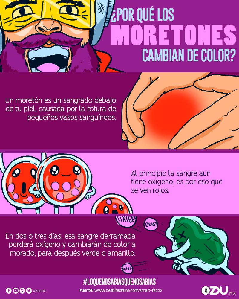 ¿Por qué los moretones cambian de color?